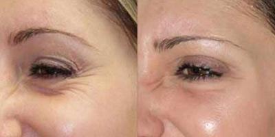 درمان چين و چروك دور چشم با ليزر