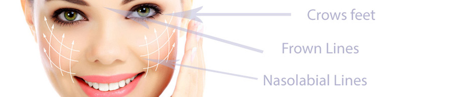 درمان و رفع خط اخم با لیزر