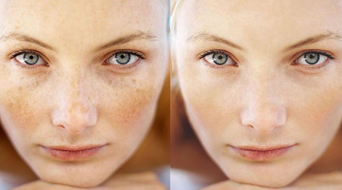 درمان کک و مک پوست با لیزر