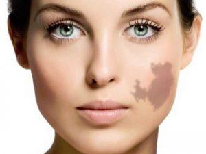 درمان ماه گرفتگی پوست با لیزر