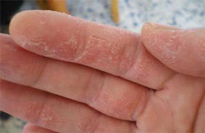 درمان پوست پوست شدن دست ها