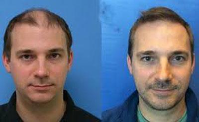 پزشك و هزينه دو عامل مهم در كاشت مو