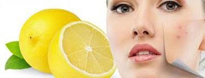 آبلیمو روش خانگی برای رفع لکه های پوستی