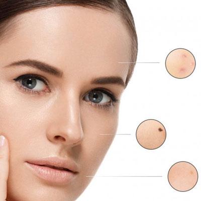 درمان لك هاي پوستي با كرم