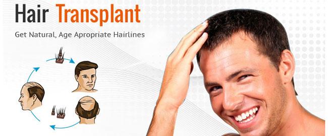 فکرهای اشتباه درباره کاشت مو طبیعی