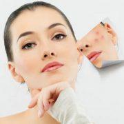 درمان اسکار آتروفیک