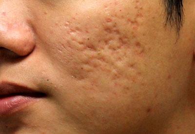 درمان اسکار آتروفیک با میکرونیدلینگ