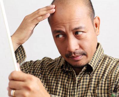 ميكرونيدلينگ و درمان آلوپسيا