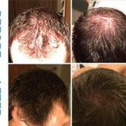 محلول ماینوکسیدل برای درمان ریزش مو