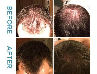 محلول ماينوكسيدل براي درمان ريزش مو