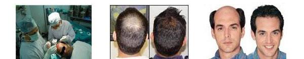 کاشت مو به روش fci
