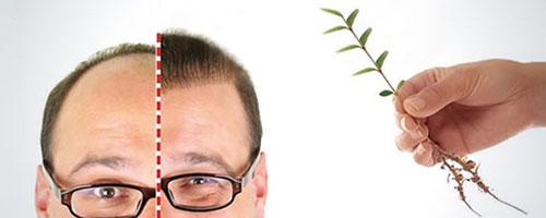 رشد موی کاشته شده
