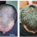 کاشت موی طبیعی بدون عمل جراحی
