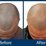 کاشت مو به روش تریکوتیلومانیا