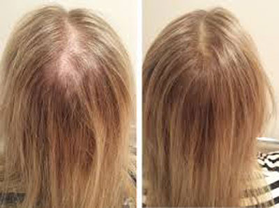 کاشت موی طبیعی در زنان