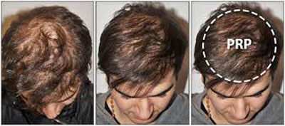 PRP از راه های درمان و تقویت مو
