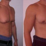 جراحی زیبایی سینه مردان
