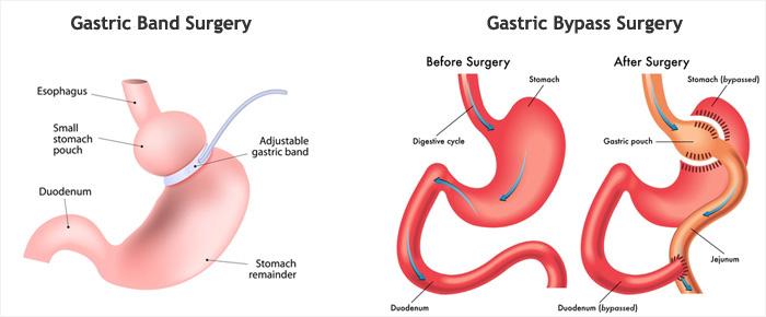 جراحی حلقه معده