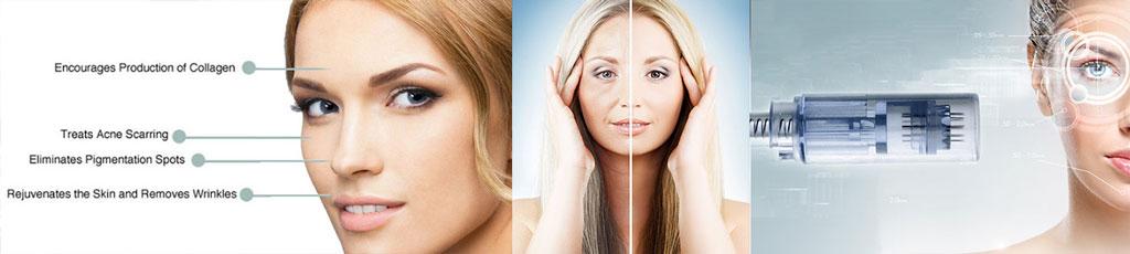 میکرونیدلینگ و تاثیر آن بر پوست