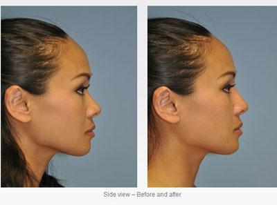 اصلاح گردی نوک بینی با جراحی