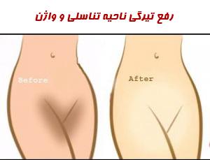 رفع تیرگی واژن
