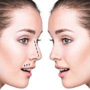 جراحی بینی در دوران بارداری