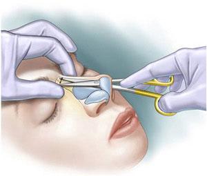 جراحی باز بینی