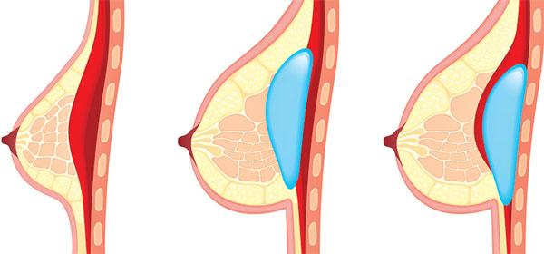 جراحی زیبایی سینه خطر ابتلا به سرطان