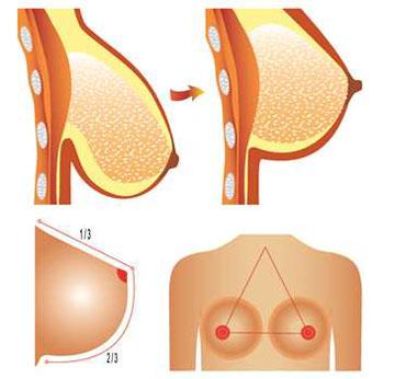متخصص جراحی سینه
