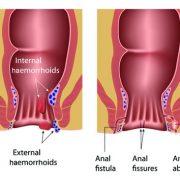 درمان شقاق یا فیشر مقعد به روش دیلاتاسیون