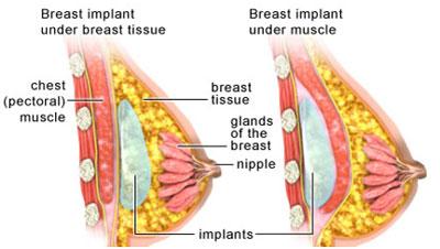 دوران نقاهت بعد از جراحی زیبایی سینه
