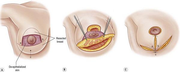 جراحی زیبایی سینه