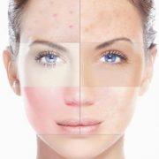 دلیل ایجاد لکه در سطح پوست
