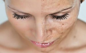 رفع لکه های قهوه ای پوست با لیزر