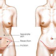 نتايج دراز مدت جراحى زیبایی سينه