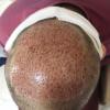 جوش بعد از کاشت مو