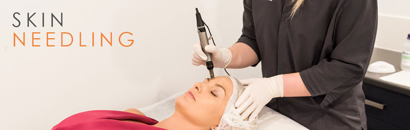 ميكرونيدلينگ و تاثير آن بر پوست