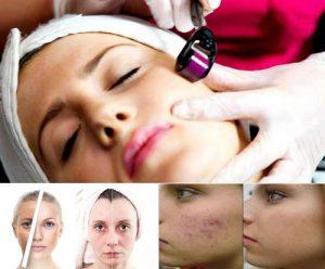 میکرونیدلینگ و درمان امراض پوستی
