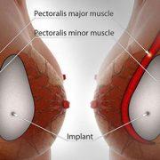 جراحی زیبایی بزرگ کردن سینه