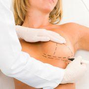 جراحی کوچک کردن سینه