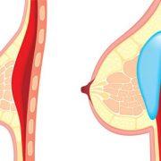 جراحی زیبایی سینه خطر ابتلا به سرطان سینه