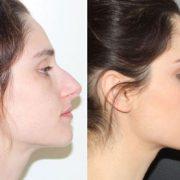 پیشگیری از اسکار بعد از جراحی بینی