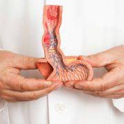 تشخیص بیماری سلیاک