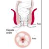 جراحی شقاق یا فیشر مقعد به روش اسفنکتروتومی
