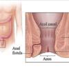 درمان شقاق یا فیشر مقعد با لیزر