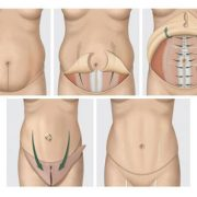 عوارض جراحی ابدومینوپلاستی