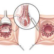 علائم و نشانه های فیستول مقعد